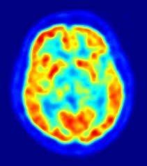Addicted brain