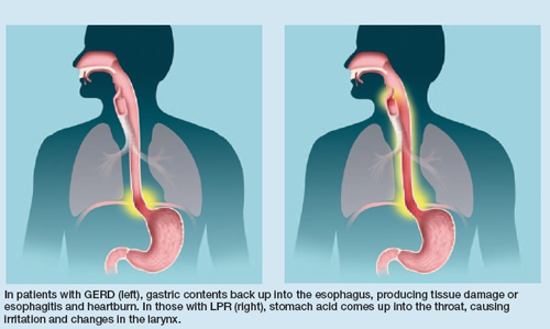 Natural Remedies For Laryngopharyngeal Reflux