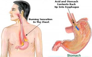 heartburn-causes-and-treatment-at-home